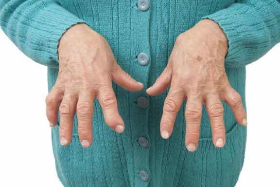 Облекчете ревматоидния артрит с натурални лечебни средства