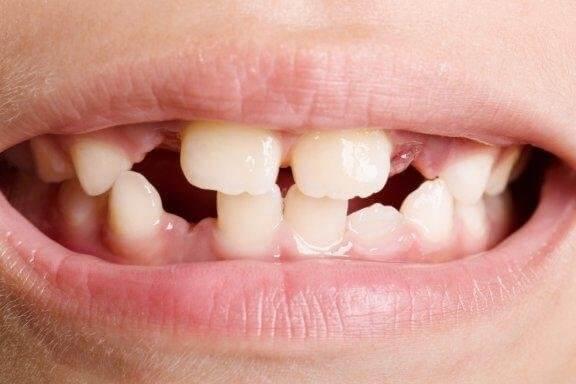 Зъбна агенезия: видове и лечение