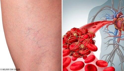 3-те най-добри домашни лечебни средства срещу флебит