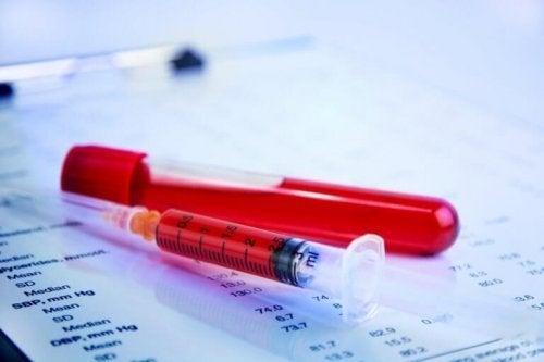 При менструация: епруветка и спринцовка, пълни с червена течност