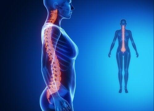 Под влиянието на среса: болка в долната част на гърба. Снимка на гръбначния стълб