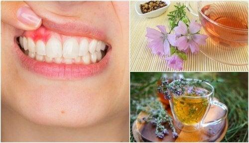 5 натурални домашни средства срещу гингивит