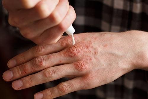 Овлажнявайте редовно кожата си, за да избегнете поява на дискомфорт.