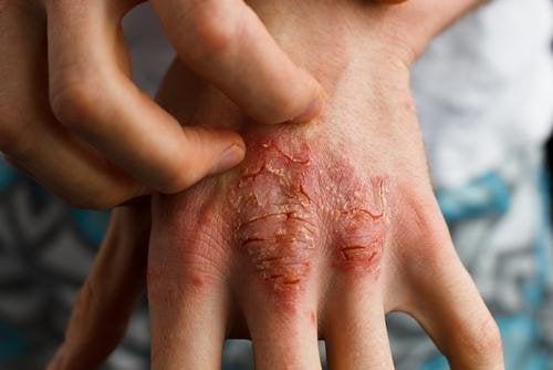 Симптоми на псориатричен артрит