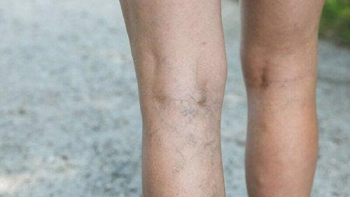 За да избегнете разширените вени: снимка на долната част на краката на жена, с разширени вени.