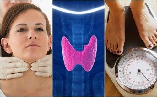Заболяването хипотиреоидизъм: 10 признака, по които се разпознава
