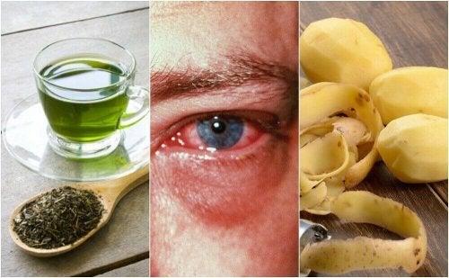 За лечение на възпалени очи: 8 ефективни домашни средства