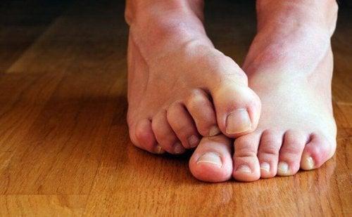 Ходилата са предразположени към появата на чести инфекции.