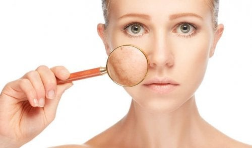 Хиперпигментацията по лицето може да е признак за здравословен проблем.
