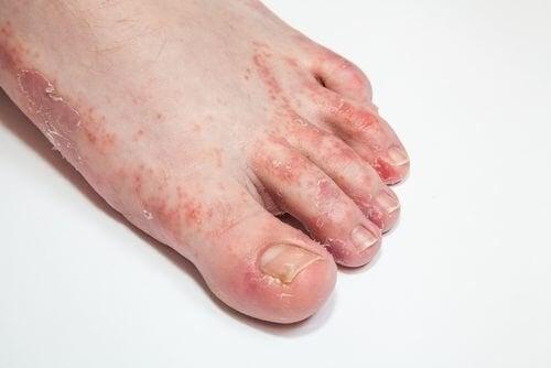 Кожните гъбични инфекции: 15 натурални средства за лечение