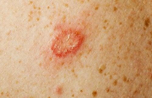 Кожните гъбични инфекции: снимка на възпалена кожа