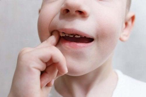 Захарта е сред основните причини за появата на зъбните кариеси.