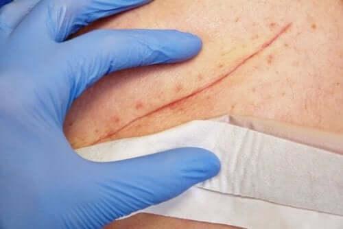 Основни техники за затваряне на раните