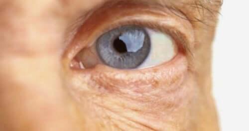 Макулната дегенерация: снимка на око на възрастен човек