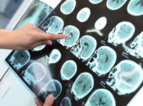 Основно неврокогнитивно разстройство (Деменция): същност и лечение