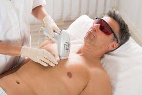 Мъж, подложен на лазерна епилация