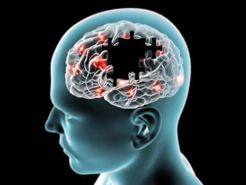 Работата на мозъка зависи от редица фактори.