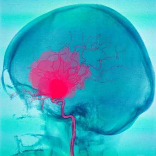 Субарахноидни и субдурални кръвоизливи