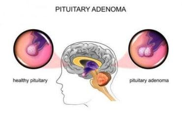 Аденоми на хипофизата: Причини и симптоми