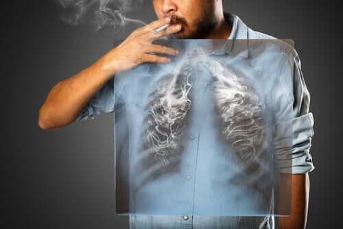 Пушенето далеч не засяга единствено белите дробове.
