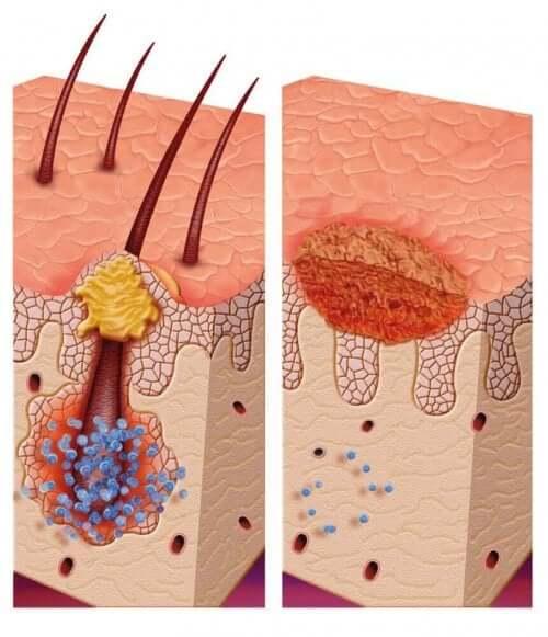 Синдром на множествена пиломатриксома: рисунка на кожните клетки