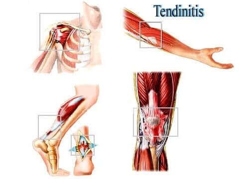Нараняванията на меките тъкани поради претоварване - тендинит