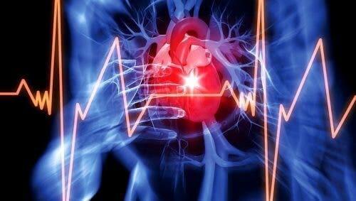 Перикардната ефузия: арт схема на кардиограма