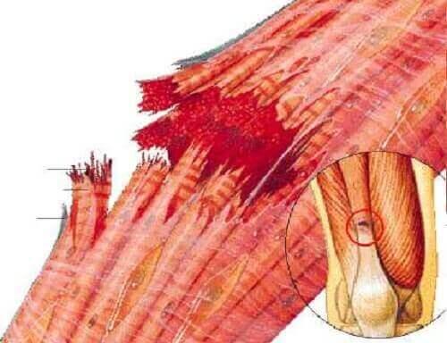 Мускулното разтягане: рисунка на мускул и скъсани мускулни влакна