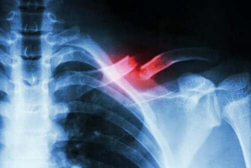 Стресова фрактура: рентгенова снимка на стресова фрактура на рамо