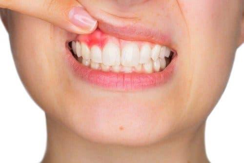 Водата за уста се използва и за лечението на възпалени венци.