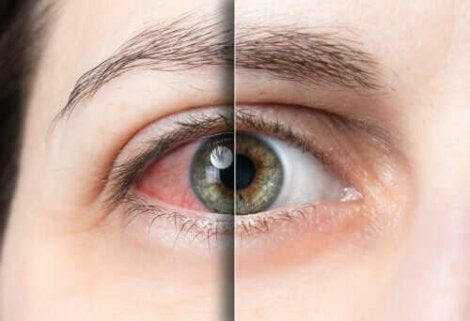 Конюнктивитът: зачервено око на жена