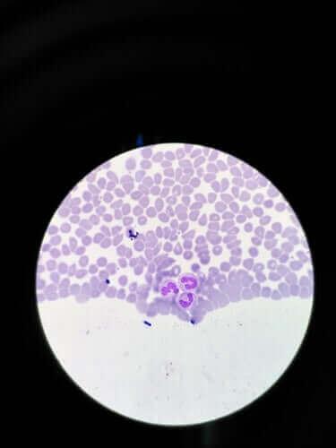 Агранулоцитозата: Симптоми и начини за лечение