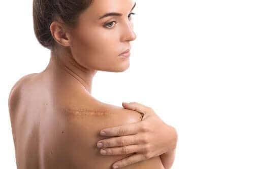 Снимка на жена с хирургия на раменна става