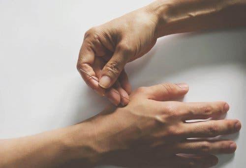 Акупунктура с игли по ръцете