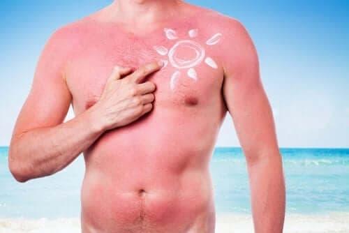Вредните ефекти на слънцето: мъж със слънчево изгаряне