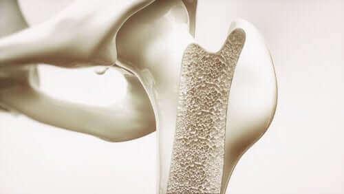 Снимка на човешка става и кост