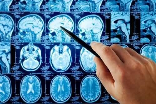 Рентгенова снимка на мозъка
