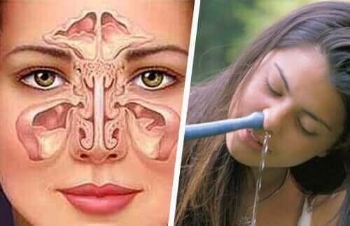 Диаграма на нос и жена, която си прави промиване на носа