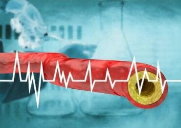 Дръжте настрана високия холестерол чрез вашата диета