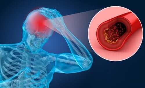 Мозъчният удар: рискови фактори и симптоми