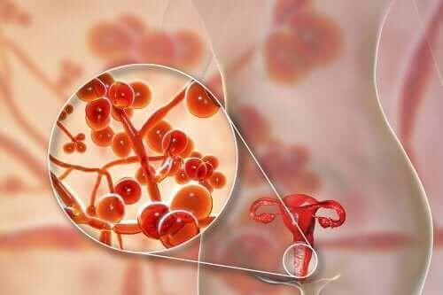 Микоплазма гениталиум: причини, симптоми и лечение