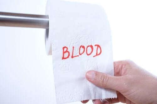 Ректалното кървене: защо се появява?