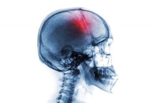Мозъчният удар: схема на череп