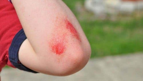 Редица натурални средства спомагат предотвратяване възпалението на кожата.