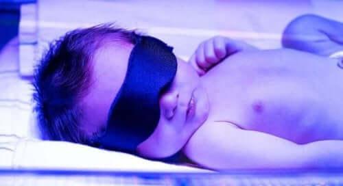 Жълтеница при новородените: бебе с такова заболяване