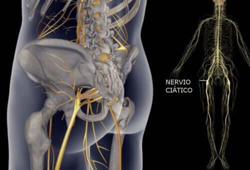 Лесни упражнения за облекчаване на болката в седалищния нерв