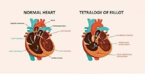 Вродената сърдечна болест: диаграма на здраво и на болно сърце