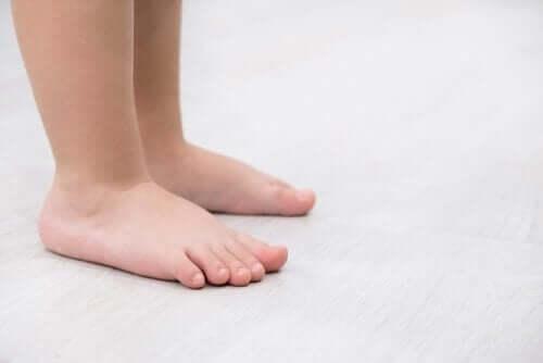 Плоскостъпие: характерни черти и лечение