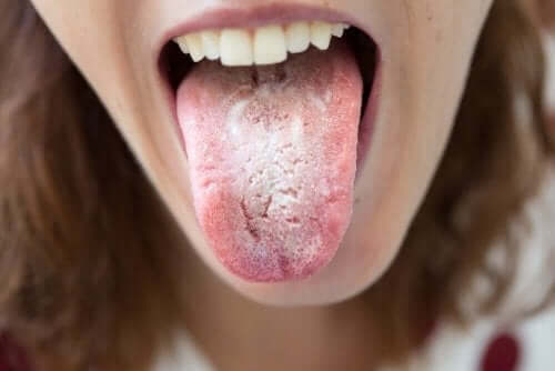 Тъмните петна по езика се появяват поради различни причини.