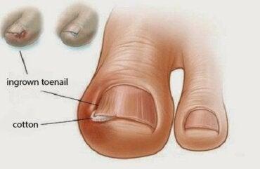 Правилното подрязване на ноктите и предотвратяване на врастването